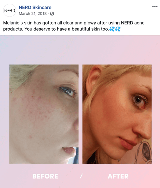 Example of how Nerd Skincare used a before-and-after picture to create an image post for social media that drives purchases of their products.